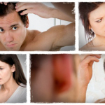 How to Stop Hair Loss and Regrowth Hair - Reduce Hair Fall Naturally