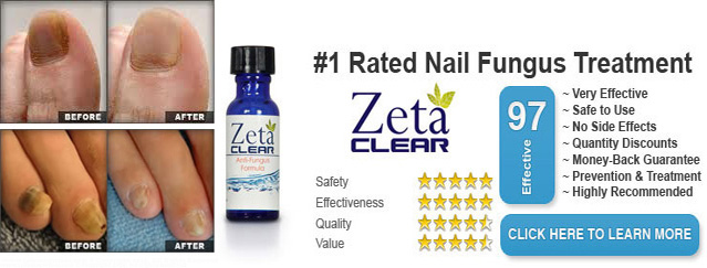 Zetaclear Reviews Nail Fungus Treatment Does Zetaclear Really