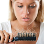 The Causes and Treatment of Hair Loss in Women