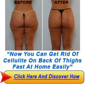 Get Rid Of Cellulite on Back of Thighs