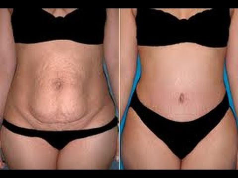 How to Get Rid Of Stretch Marks Fast & Naturally